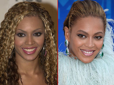 Beyonce -- Good Genes or Good Docs