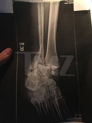 Steve-O's Foot Injury Photos