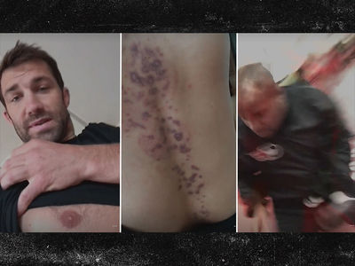 Luke Rockhold -- Flaunts Disgusting Skin Marks ... Swears It's Not Contagious (VIDEO)