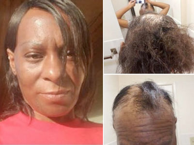 L'Oréal Sued -- No-Lye ... You Burned My Head!!! (PHOTO GALLERY)