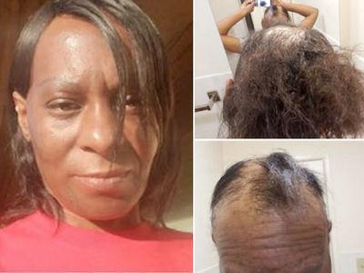 L'Oréal Sued -- No-Lye ... You Burned My Head!!! (PHOTO GALLERY)
