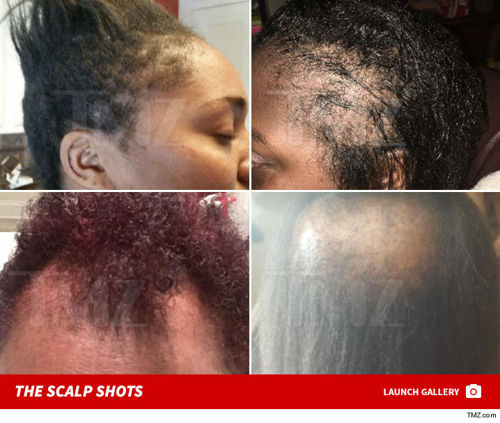 l oreal softsheen hair relaxers should be recalled lawyers demand
