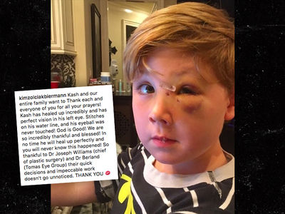 Kim Zolciak Posts Photo of Son Kash's Injured Face Post-Dog Bite (PHOTO)