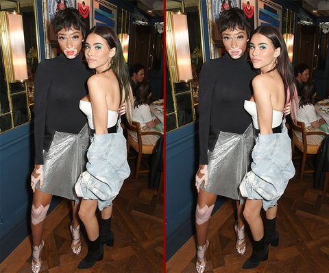 Can you spot the THREE differences in the Winnie Harlow and Madison Beer photos?