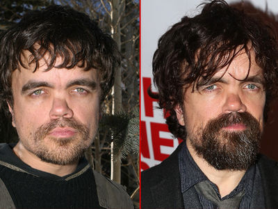 Peter Dinklage: Good Genes or Good Docs?
