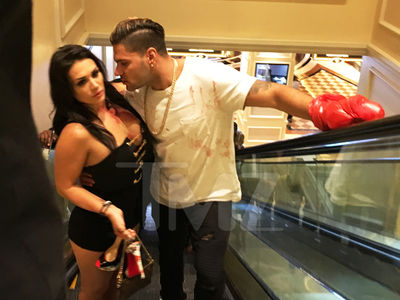 Ronnie From 'Jersey Shore' Bloody Mess in Las Vegas (UPDATE)