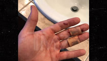 'Jersey Shore' Ronnie's Hand Sliced Deep in VIP
