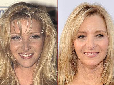 Lisa Kudrow -- Good Genes or Good Docs?