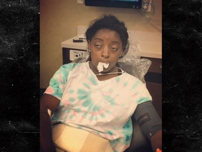 Simone Biles Drugged Up After Surgery, Watch Me Whip!