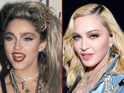 Madonna -- Good Genes or Good Docs?