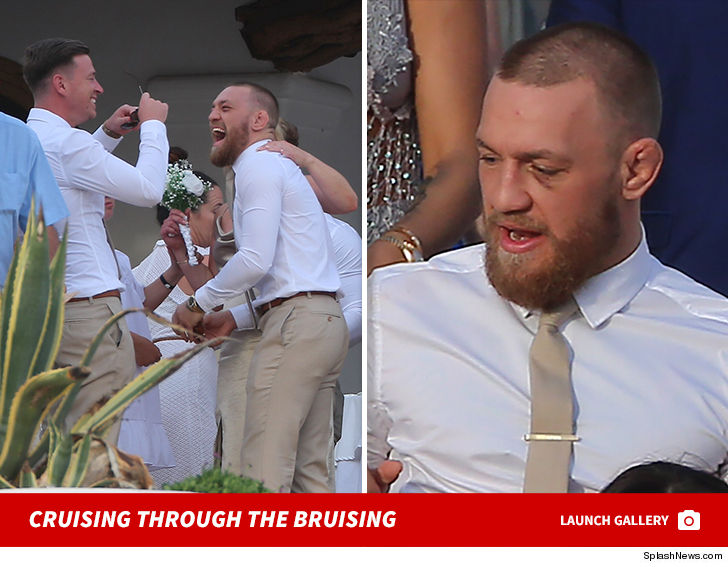 Conor McGregor My Party Train's in Ibiza Now ... Black Eye and All!!