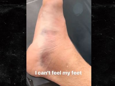 UFC's Luke Rockhold: 'I Can't Feel My Feet,' Shows Off Gross Post-Fight Swelling
