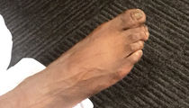 NBA's Reggie Jackson Reveals Jacked Up Feet!
