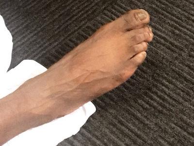 NBA's Reggie Jackson Reveals Jacked Up Feet!