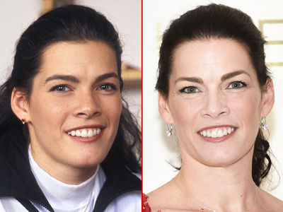 Nancy Kerrigan -- Good Genes or Good Docs?