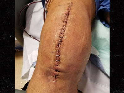 WWE Legend Kevin Nash Shares NASTY Stapled Knee Pic After Surgery