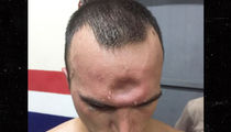 Muay Thai Fighter Suffers Dented Forehead After Brutal Elbow