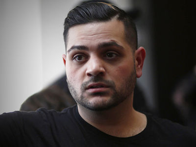 'Project Runway' Star Michael Costello Sued for Ripping Off 'Human Skin' Face Mask