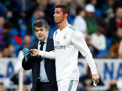 Cristiano Ronaldo Checks Bloody Face with Phone After Head Injury
