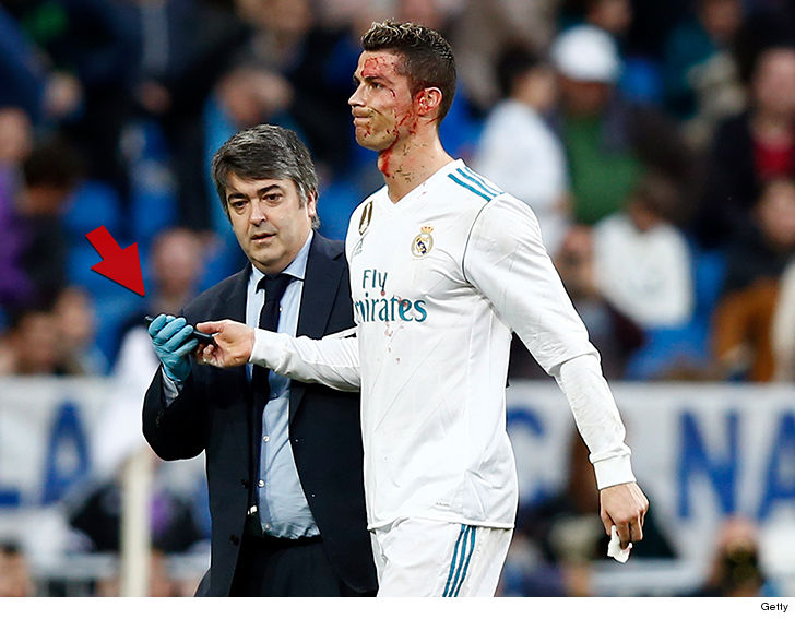 2eb2028111b Cristiano Ronaldo Checks Bloody Face with Phone After Head Injury ...