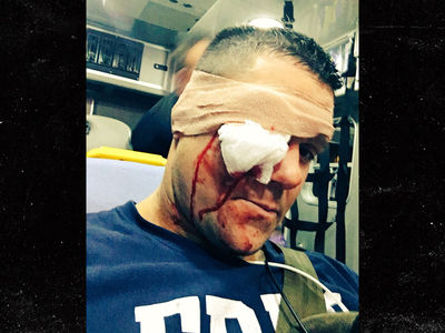 Pro Wrestler, Eddie Edwards, Takes Bat to Face In Stunt Gone Wrong, Breaks Eye Socket