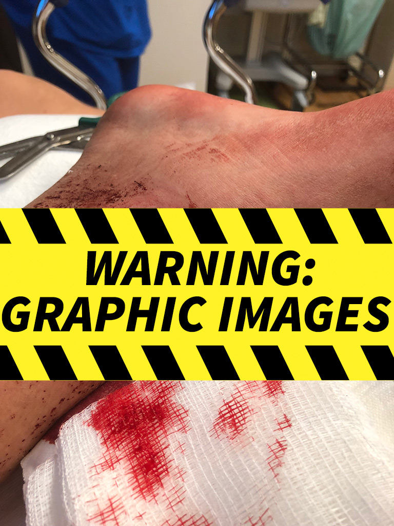 Of gunshot wounds pictures