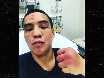 Boxing Champ Oscar Valdez Shows Aftermath Of Bloody Fight