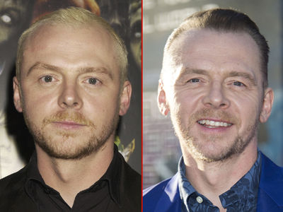 Simon Pegg -- Good Genes or Good Docs?