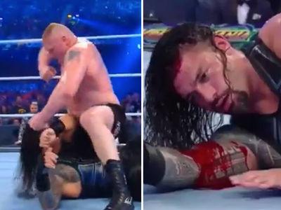 Roman Reigns Gushing Blood During Brock Lesnar 'WrestleMania' Beatdown