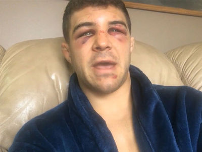 Al Iaquinta Wants Rematch with Khabib Nurmagomedov, I Can Beat Him!