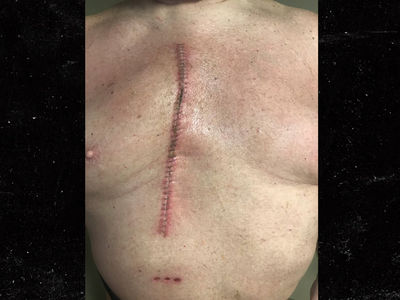 WWE Legend Vader Shows Off Gnarly Open-Heart Surgery Scar