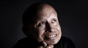Verne Troyer Dead at 49