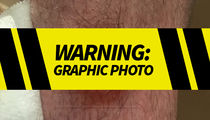 Floyd Mayweather's Bodyguard Reveals Gunshot Wound