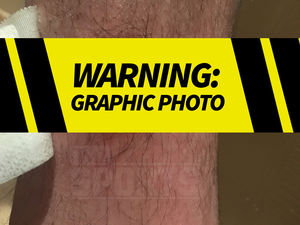 Floyd Mayweather: Bodyguard's Gruesome Gunshot Wound