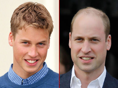 Prince William -- Good Genes or Good Docs?
