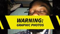 Offset Posts Several Gnarly Photos of His Car Crash Injuries