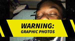 Offset Posts Several Gnarly Photos of His Car Crash Injuries