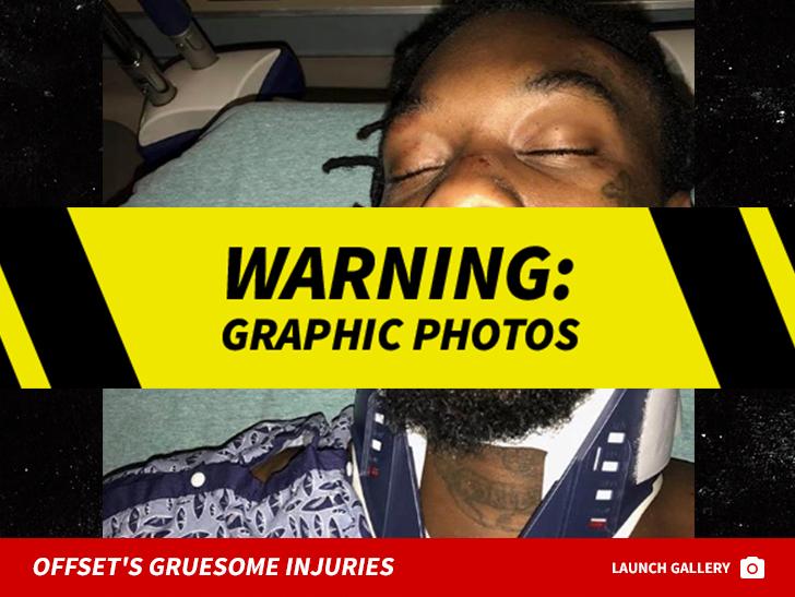 car crash injures  Offset Posts Several Gnarly Photos of His Car Crash Injuries   TMZ.com
