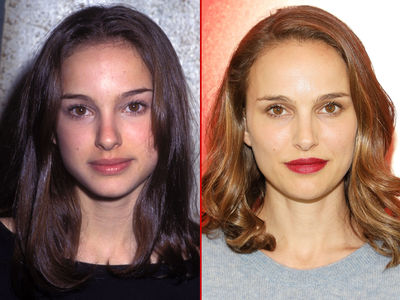 Natalie Portman -- Good Genes or Good Docs?