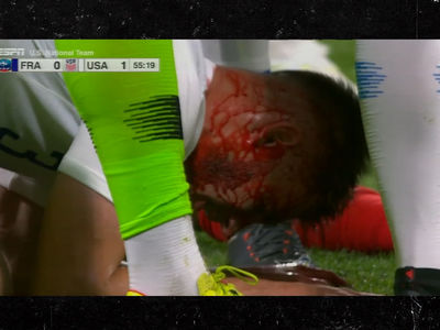 France vs. USA Soccer Features Gnarly, Bloody Headbutt Injuries