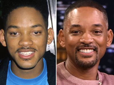 Will Smith -- Good Genes or Good Docs?