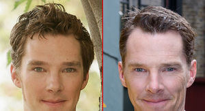Benedict Cumberbatch -- Good Genes or Good Docs?