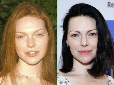 Laura Prepon -- Good Genes or Good Docs?