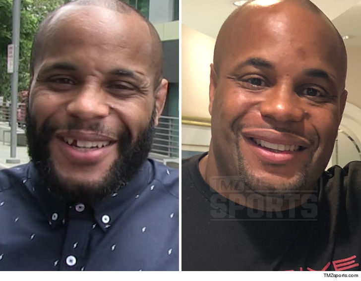 Daniel Cormier Fixes Infamous Gap in His Teeth