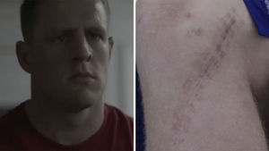 J.J. Watt Shows Off Massive Broken Leg Scar In Shoe Unveiling