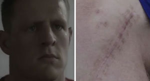 J.J. Watt Shows Off Massive Broken Leg Scar In…
