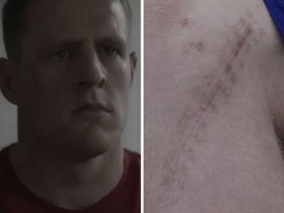 J.J. Watt Shows Off Massive Broken Leg Scar In Shoe Unveiling