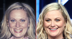 Amy Poehler -- Good Genes or Good Docs?