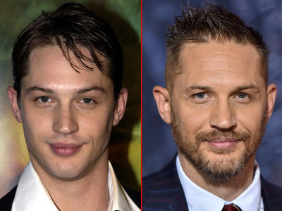Tom Hardy -- Good Genes or Good Docs?