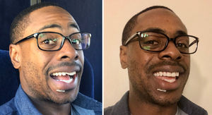 Curtis Granderson Gets Chipped Tooth Fixed Before Game 6, Check Out My Smile!